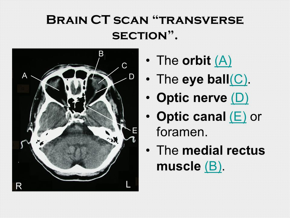 Brain CT scan transverse section .