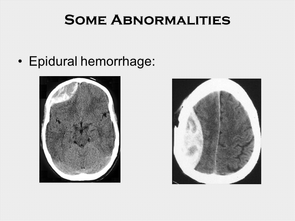 Some Abnormalities Epidural hemorrhage:
