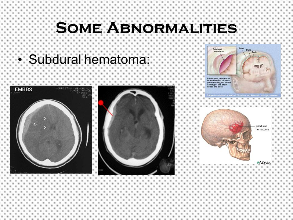 Some Abnormalities Subdural hematoma: