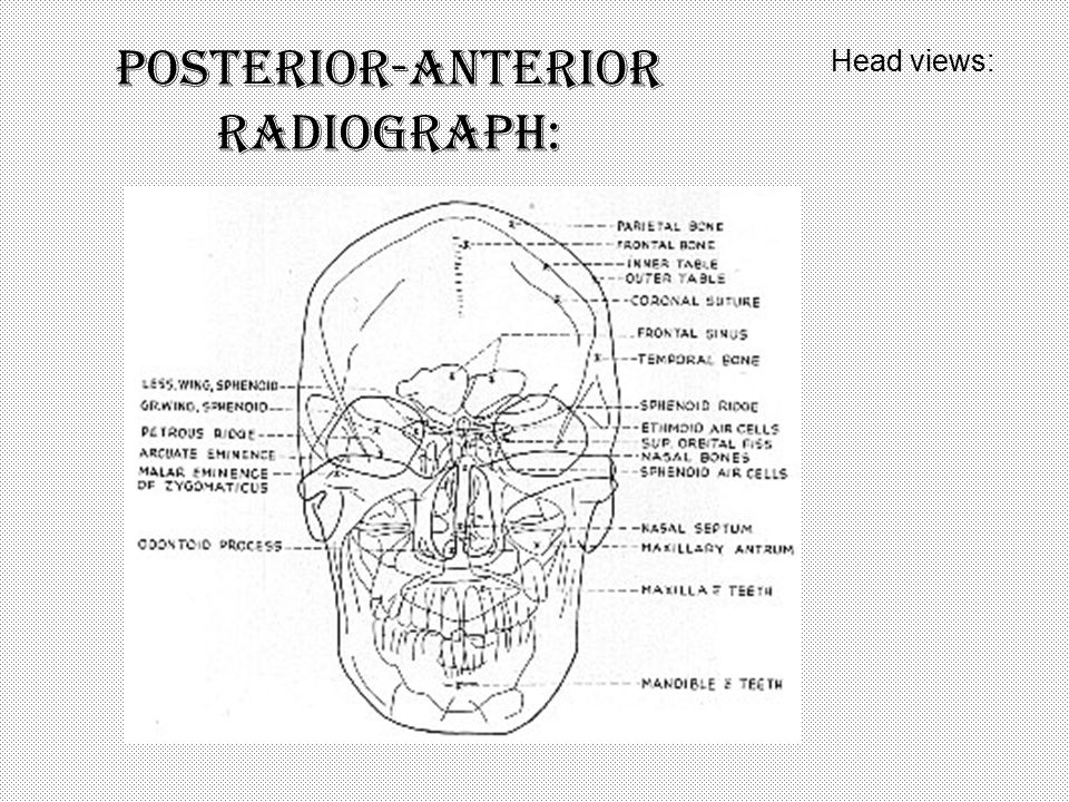 Posterior-anterior radiograph:
