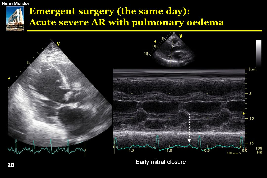 Emergent surgery (the same day): Acute severe AR with pulmonary oedema