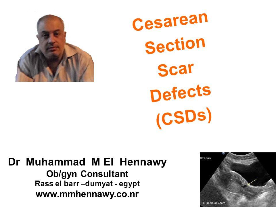 Cesarean Section Scar Defects (CSDs)