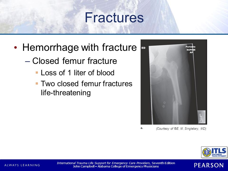 Fractures Hemorrhage with fracture Closed pelvic fracture