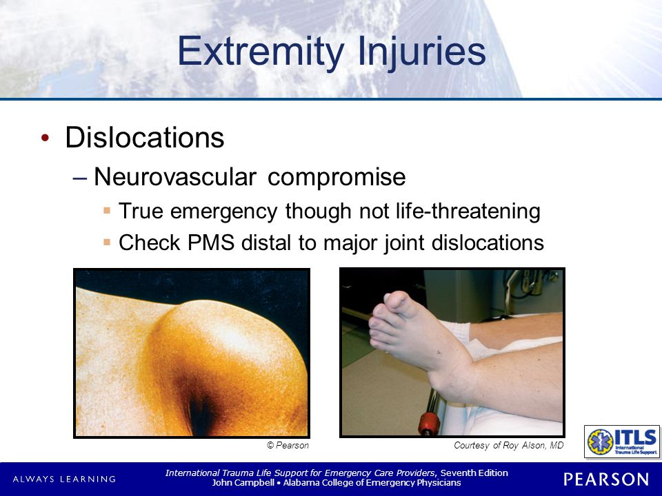 Dislocations Management No neurovascular compromise