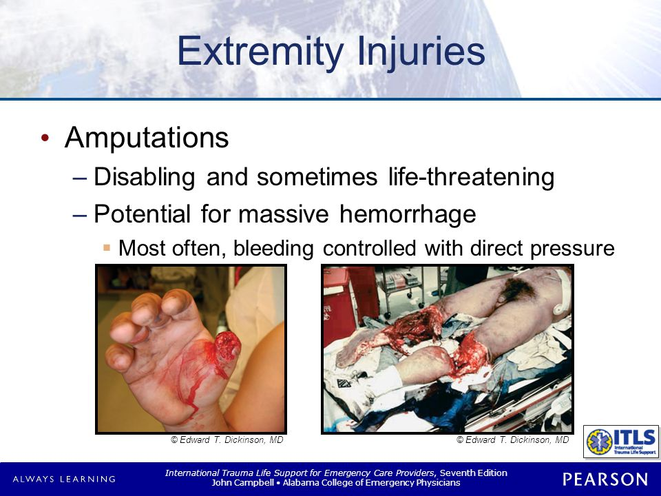 Extremity Injuries Amputation Management