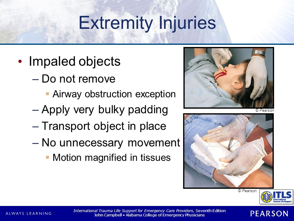 Extremity Injuries Compartment syndrome