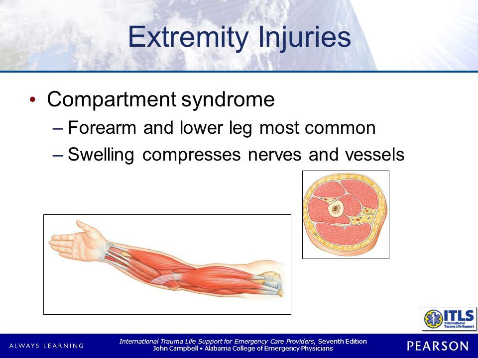 Compartment Syndrome Early symptoms Late symptoms Pain Paresthesia
