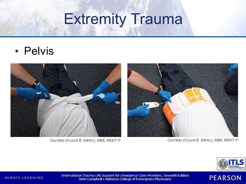 Extremity Trauma Femur