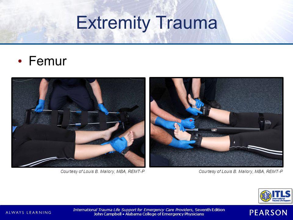 Extremity Trauma Hip © Pearson