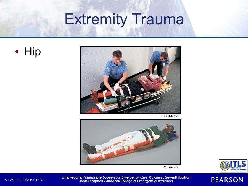 Extremity Trauma Knee.