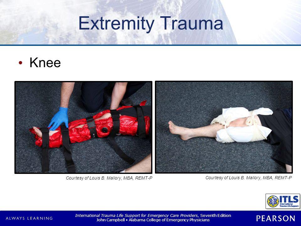 Extremity Trauma Tibia/fibula