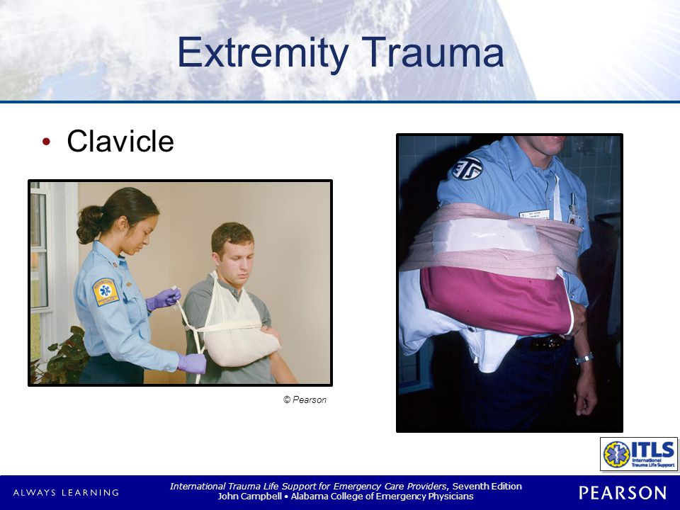 Extremity Trauma Shoulder