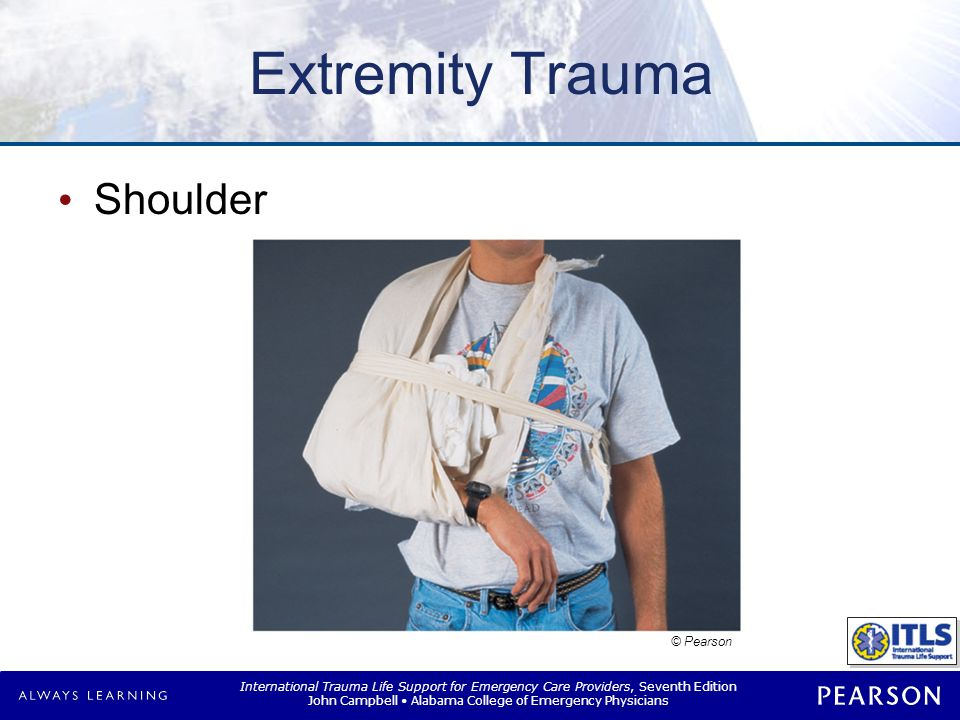Extremity Trauma Elbow