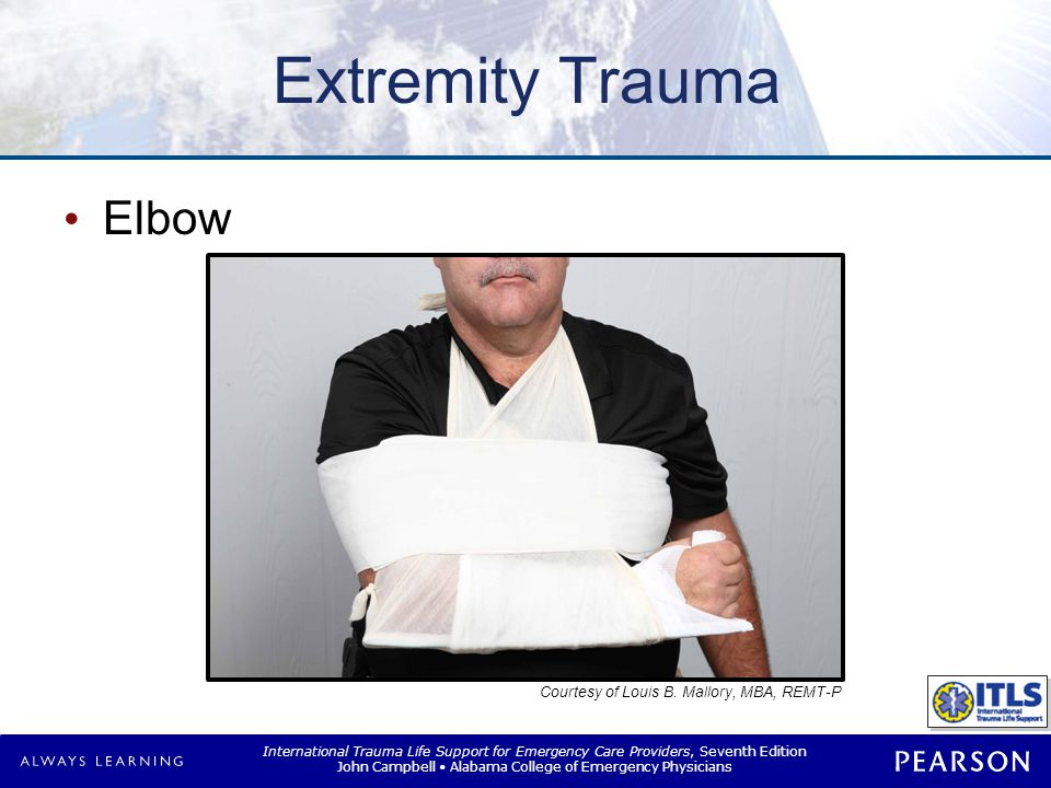 Extremity Trauma Forearm and wrist