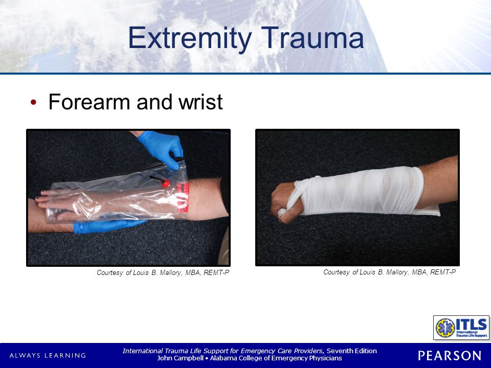 Extremity Trauma Hand or foot