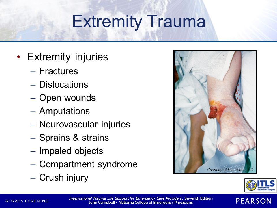 Extremity Injuries Fractures Open (compound) Closed (simple)