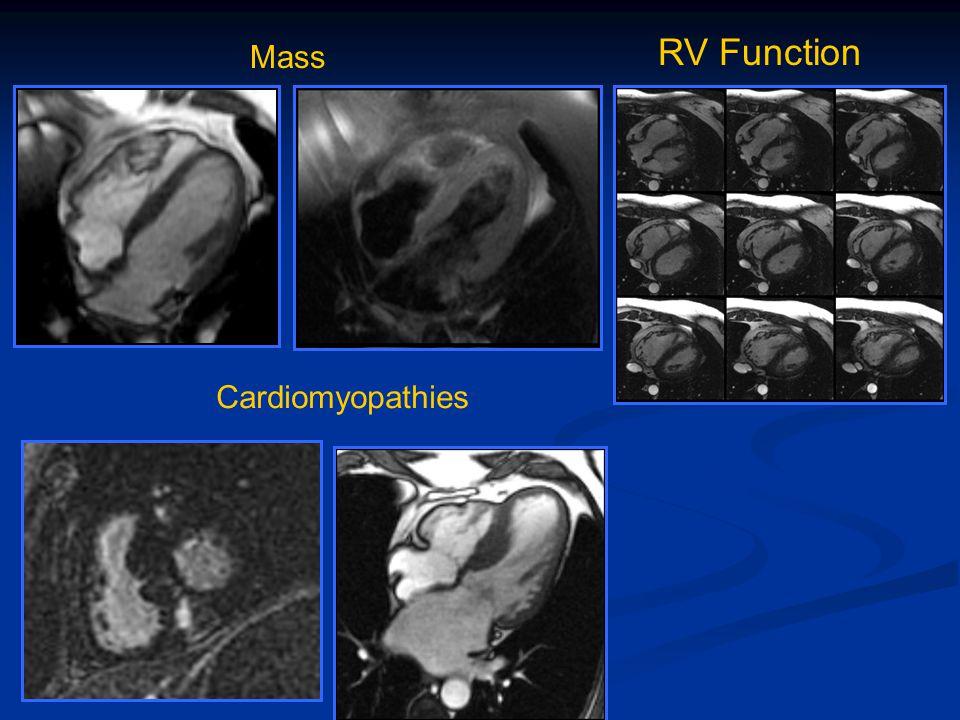 RV Function Mass Cardiomyopathies