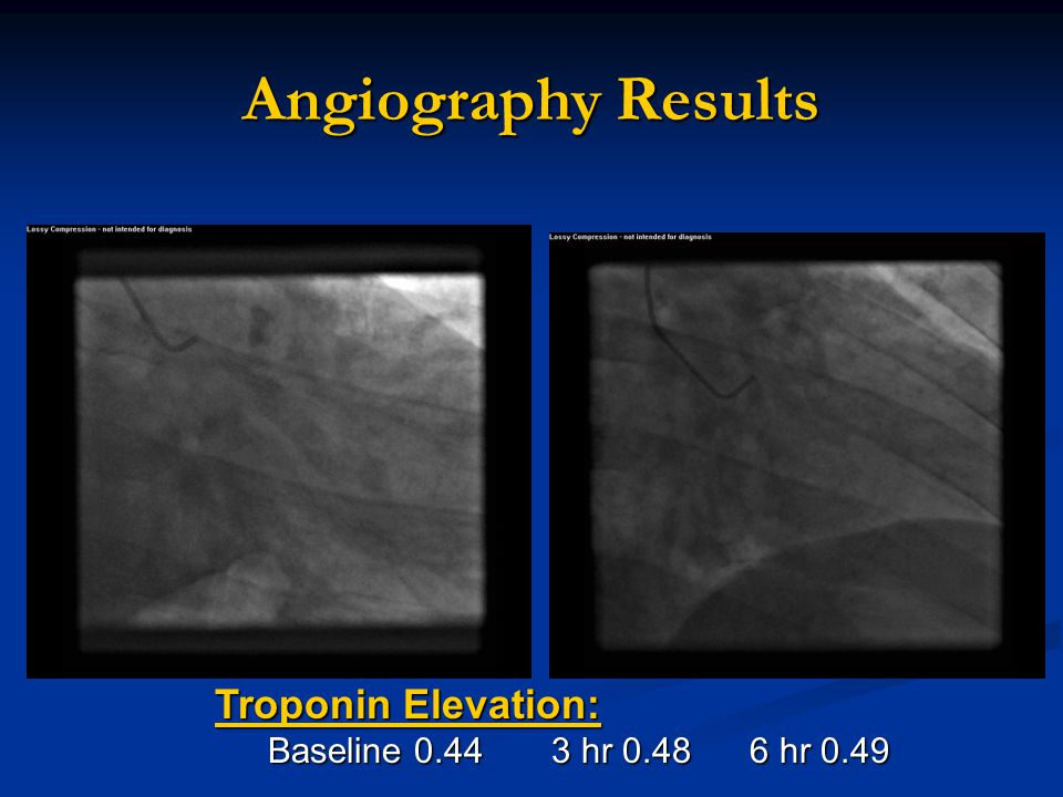 Angiography Results Troponin Elevation: