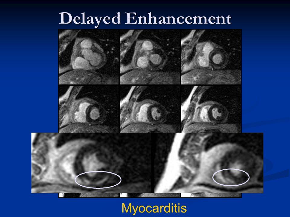 Delayed Enhancement Myocarditis