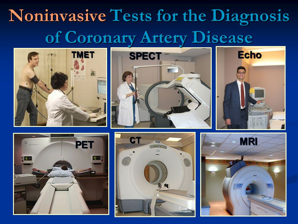 Noninvasive Tests for the Diagnosis of Coronary Artery Disease