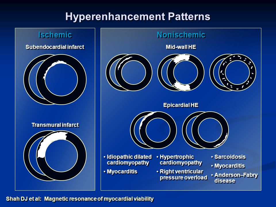Hyperenhancement Patterns Subendocardial infarct