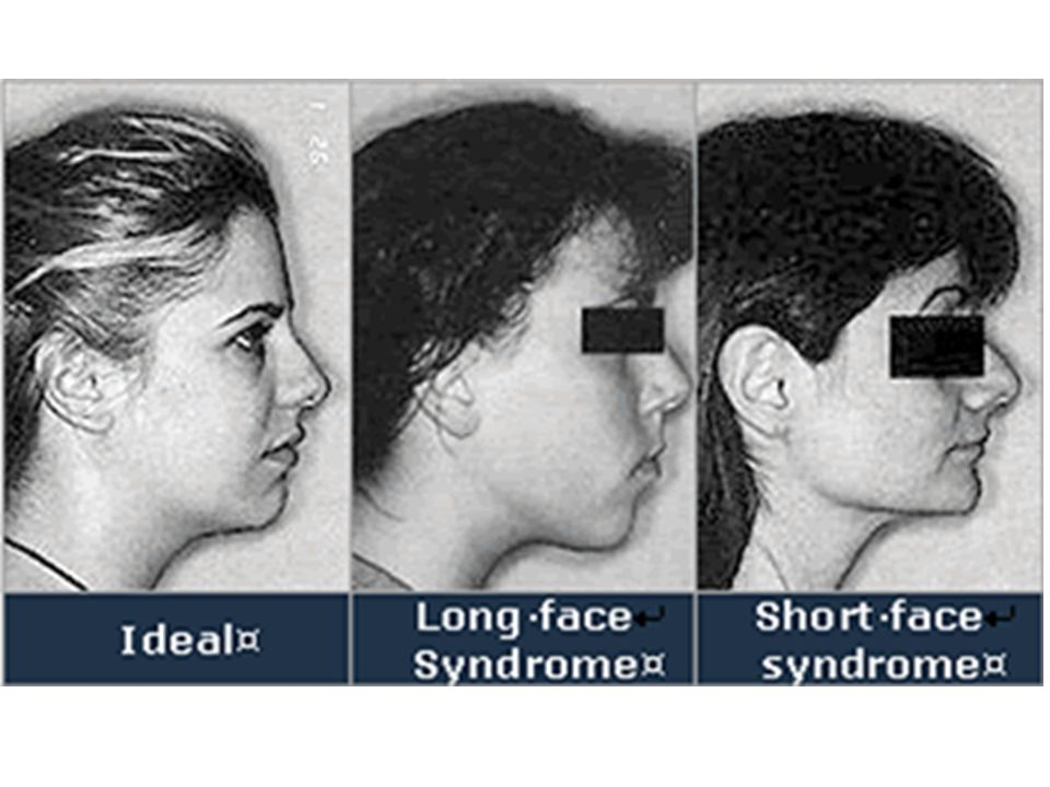 Human health is affected by facial proportions