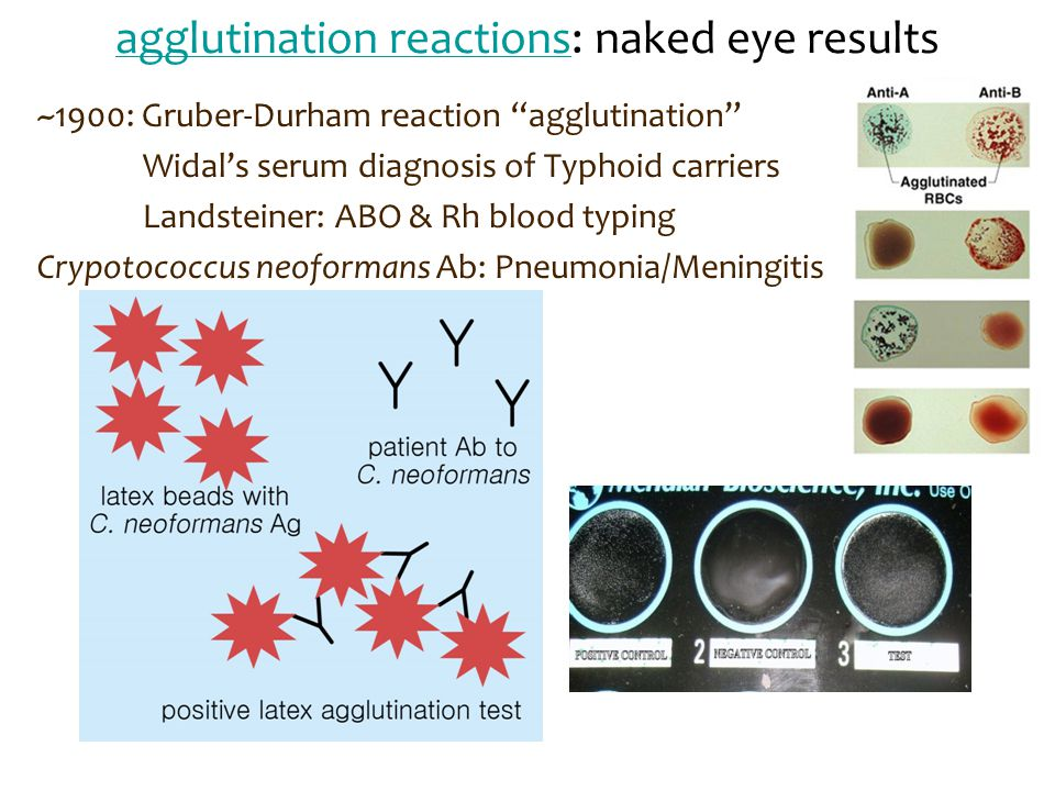 agglutination reactions: naked eye results
