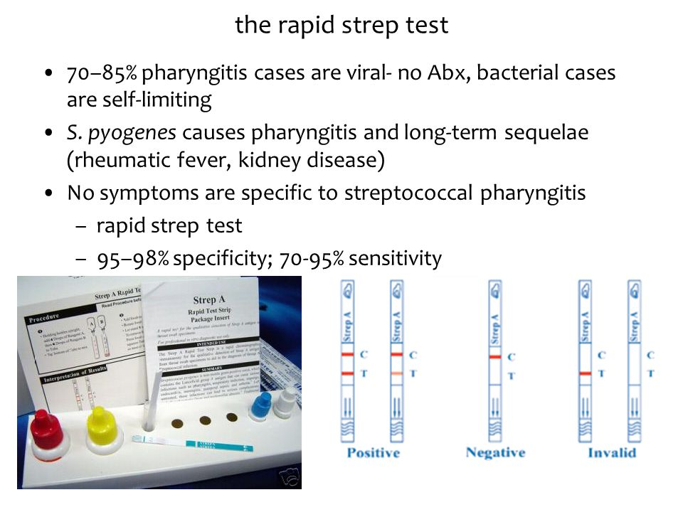 the rapid strep test 70–85% pharyngitis cases are viral- no Abx, bacterial cases are self-limiting.