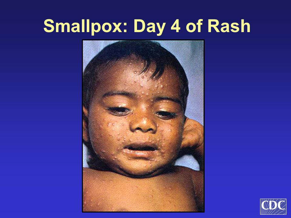 Smallpox: Day 4 of Rash