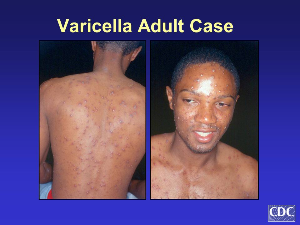 Varicella Adult Case