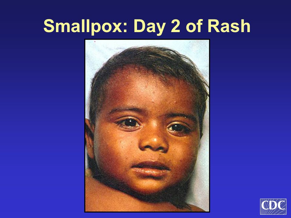 Smallpox: Day 2 of Rash