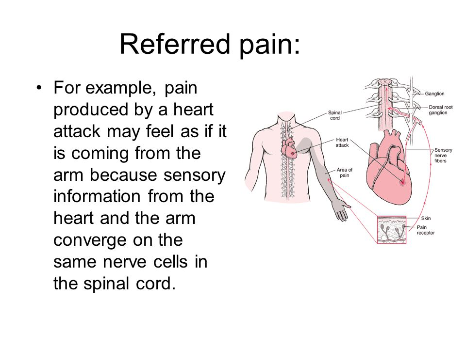Referred pain: