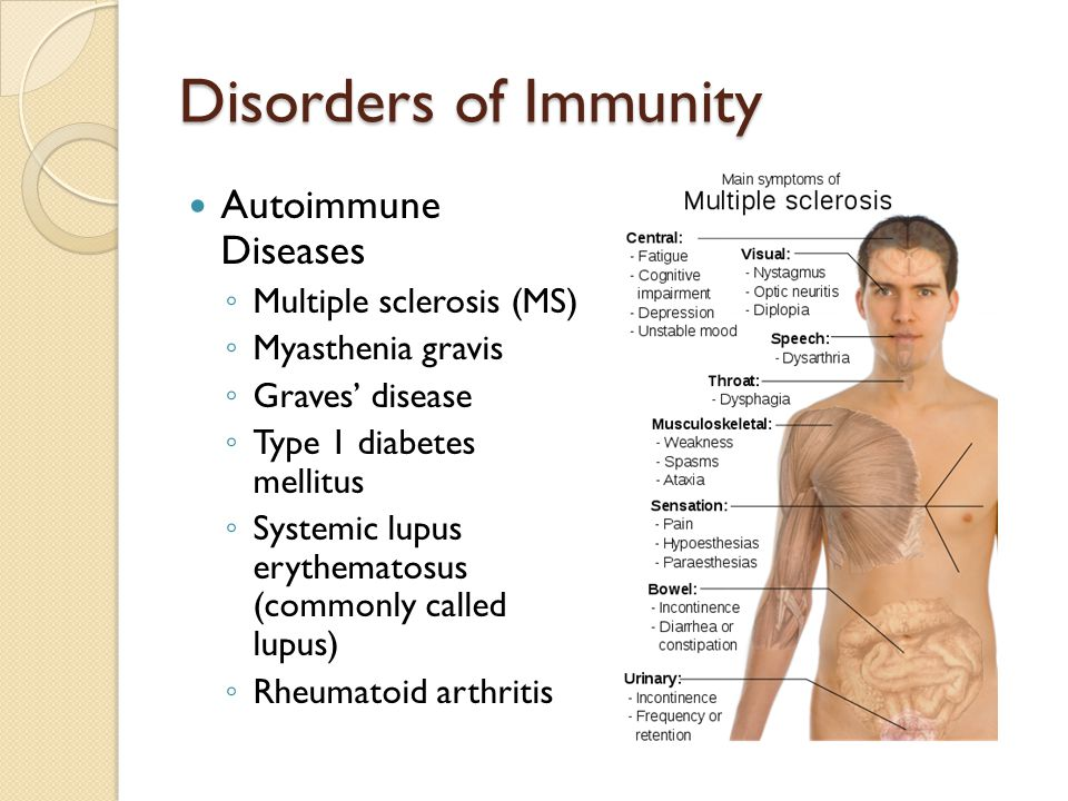 Disorders of Immunity Autoimmune Diseases Multiple sclerosis (MS)