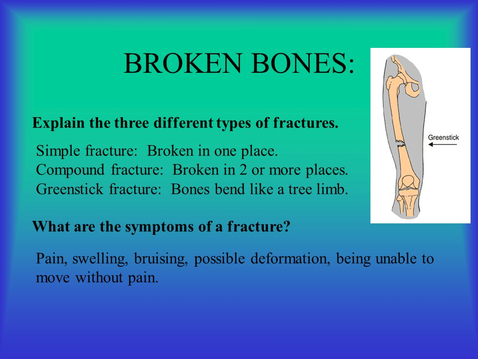 BROKEN BONES: Explain the three different types of fractures.