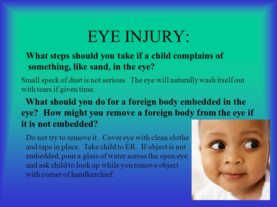 EYE INJURY: What steps should you take if a child complains of