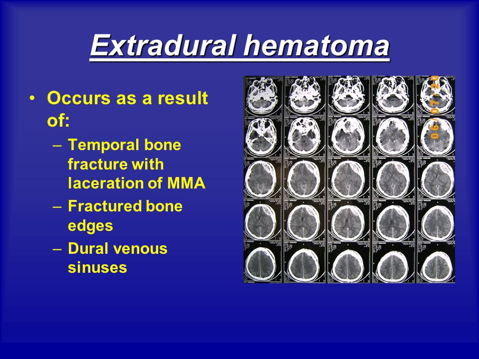 Extradural hematoma Occurs as a result of:
