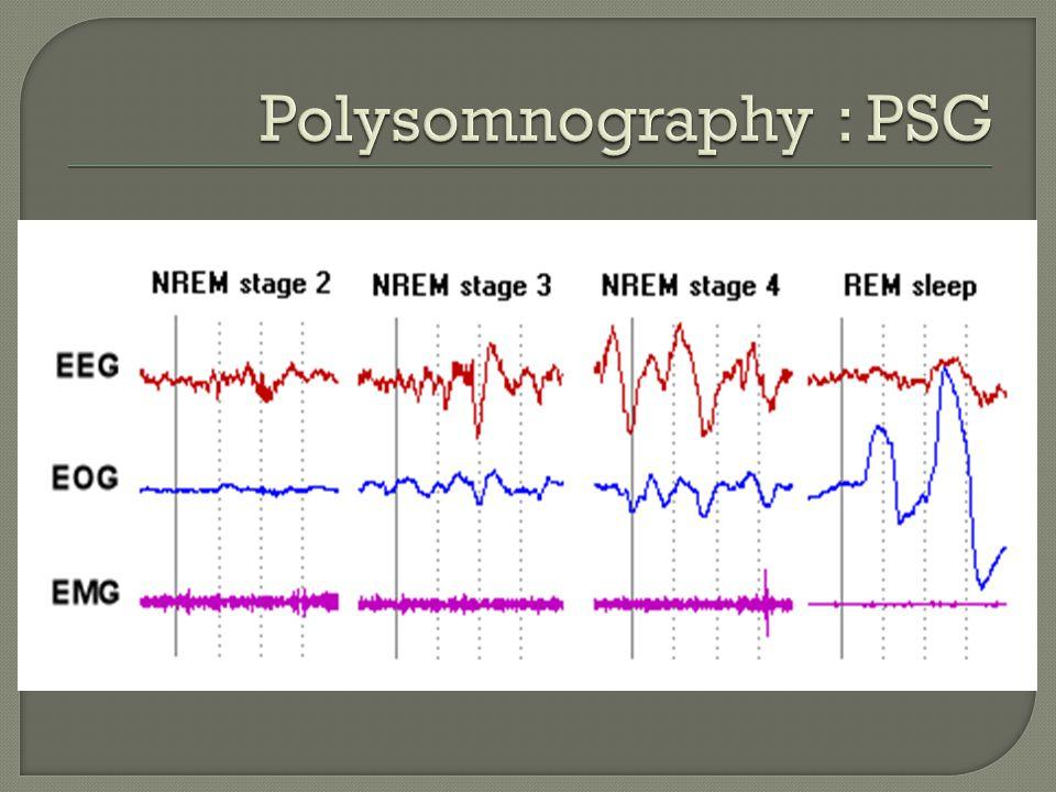 Polysomnography : PSG