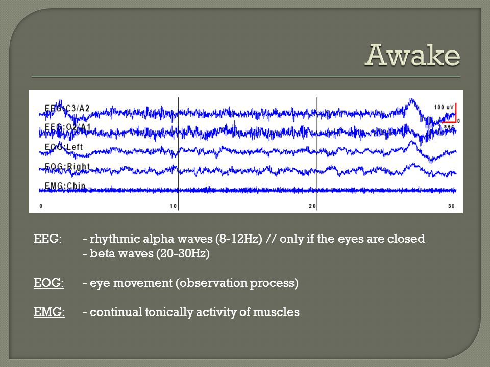 Awake EEG: - rhythmic alpha waves (8-12Hz) // only if the eyes are closed. - beta waves (20-30Hz) EOG: - eye movement (observation process)