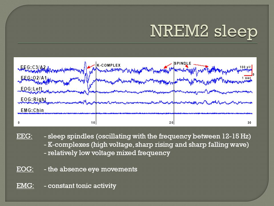 NREM2 sleep EEG: - sleep spindles (oscillating with the frequency between 12-15 Hz)