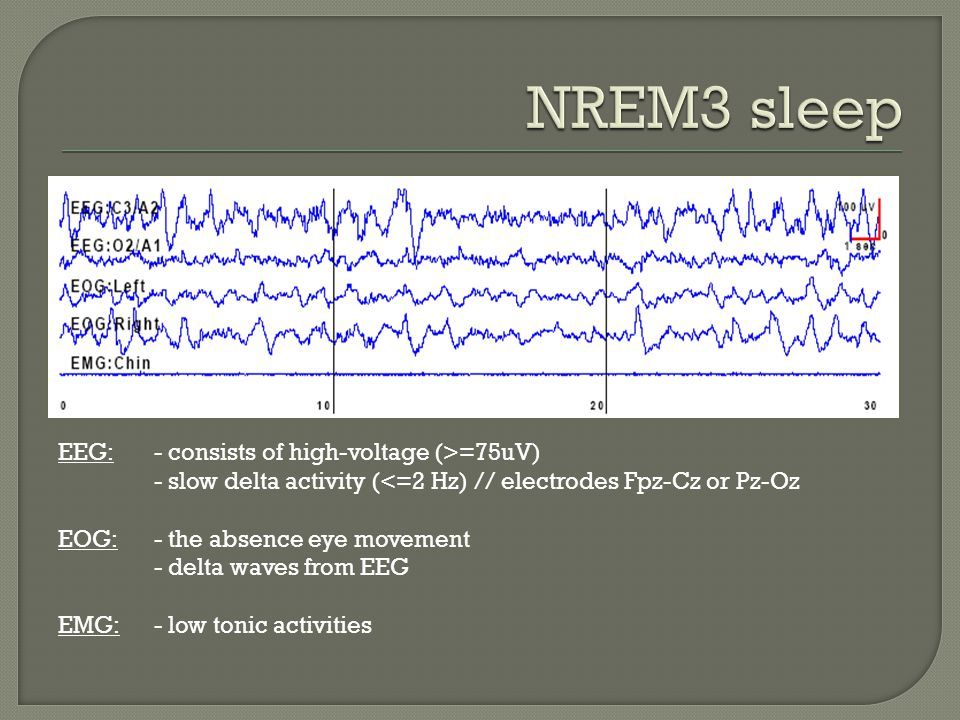 NREM3 sleep EEG: - consists of high-voltage (>=75uV)