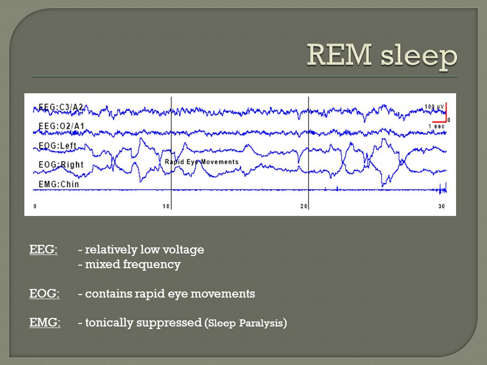 REM sleep EEG: - relatively low voltage - mixed frequency