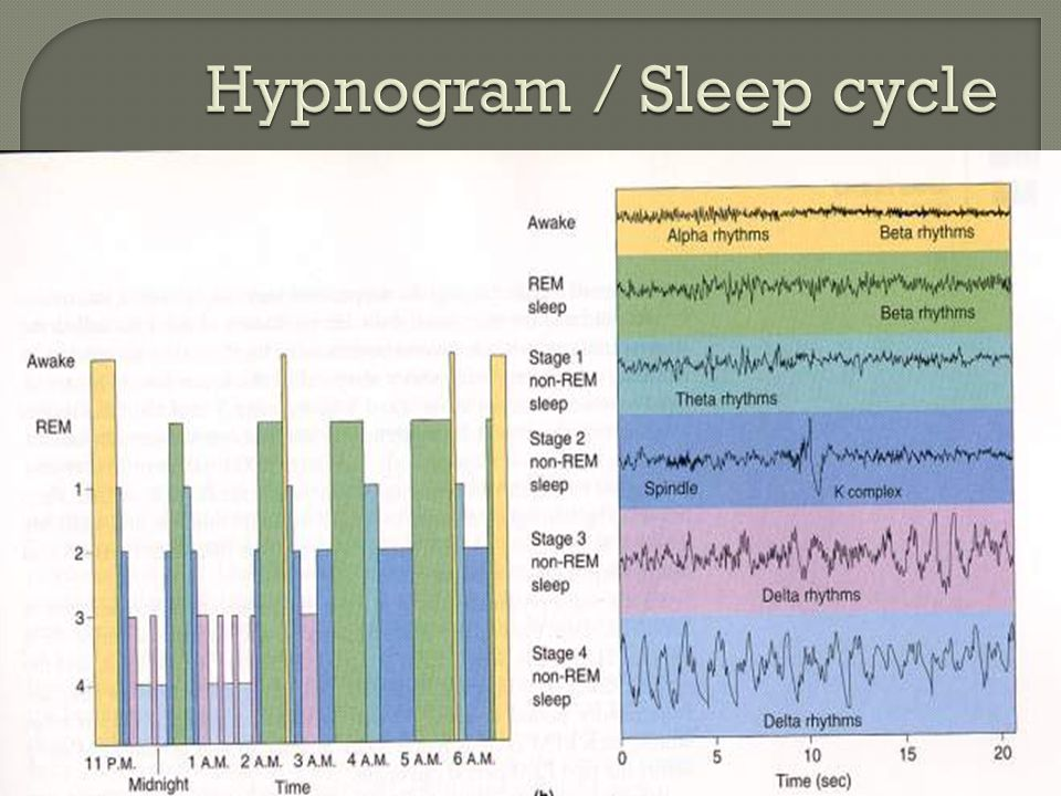 Hypnogram / Sleep cycle