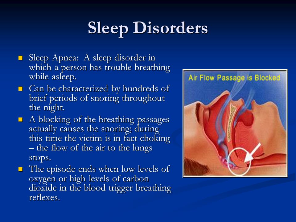 Sleep Disorders Sleep Apnea: A sleep disorder in which a person has trouble breathing while asleep.