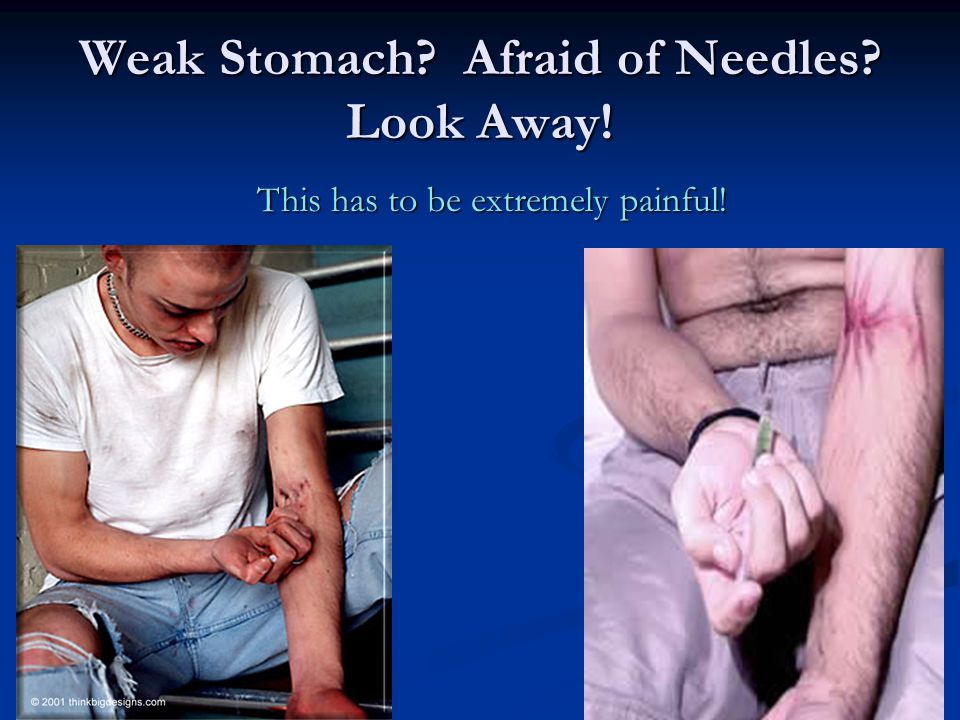 Weak Stomach Afraid of Needles Look Away!