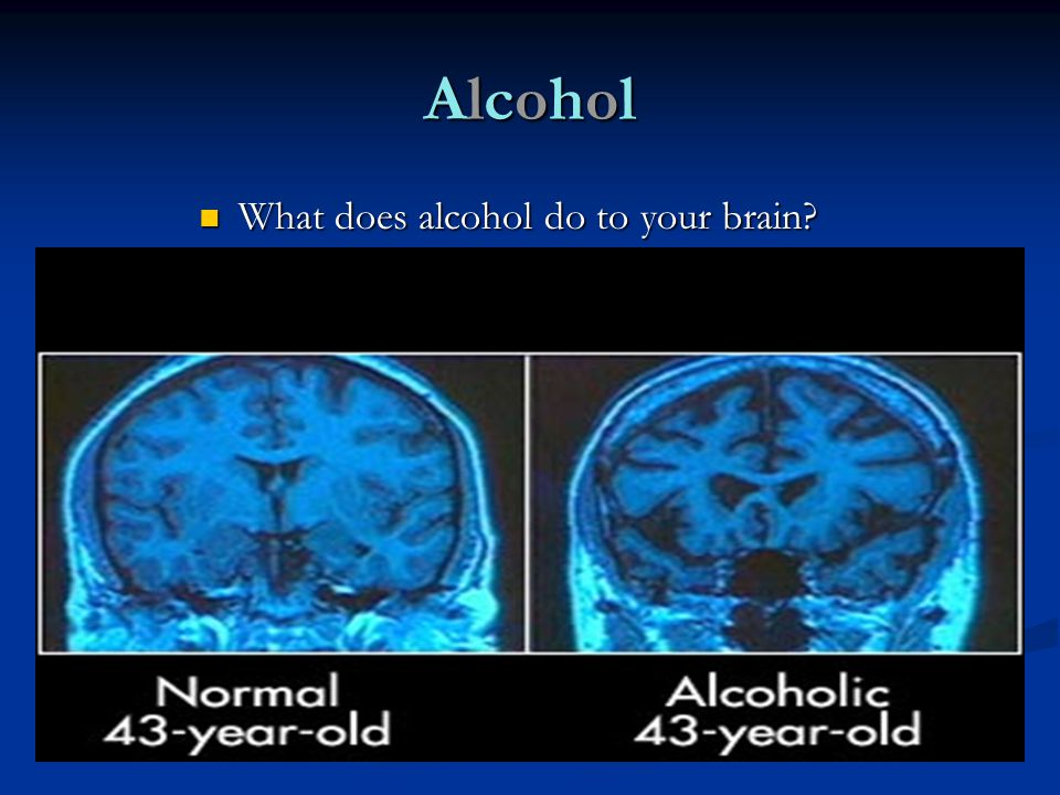 What does alcohol do to your brain