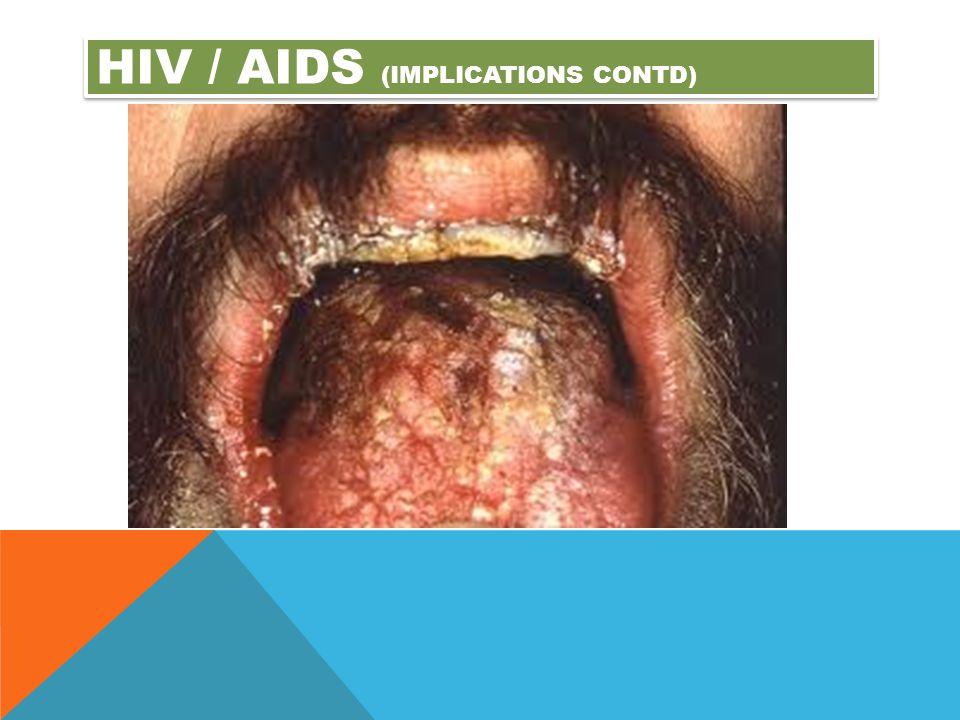 Hiv / aids (implications contd)