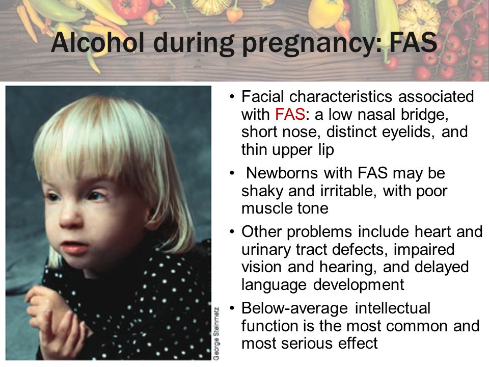 Alcohol during pregnancy: FAS