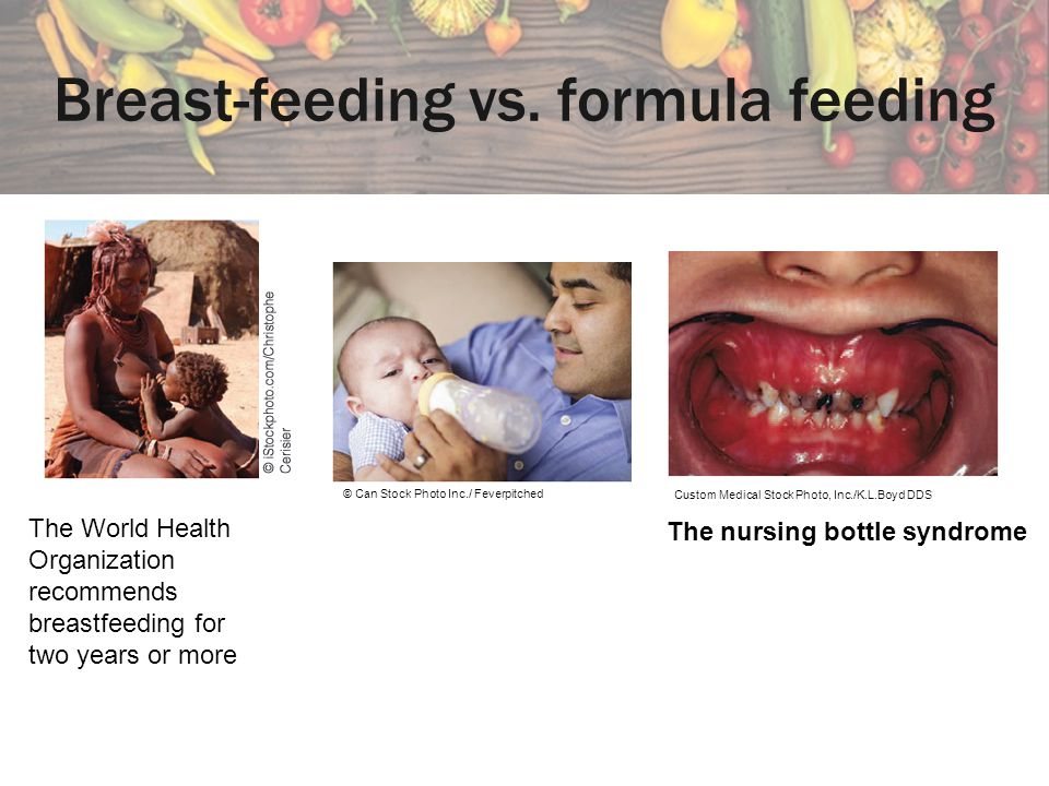 Breast-feeding vs. formula feeding