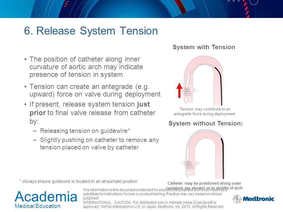 6. Release System Tension