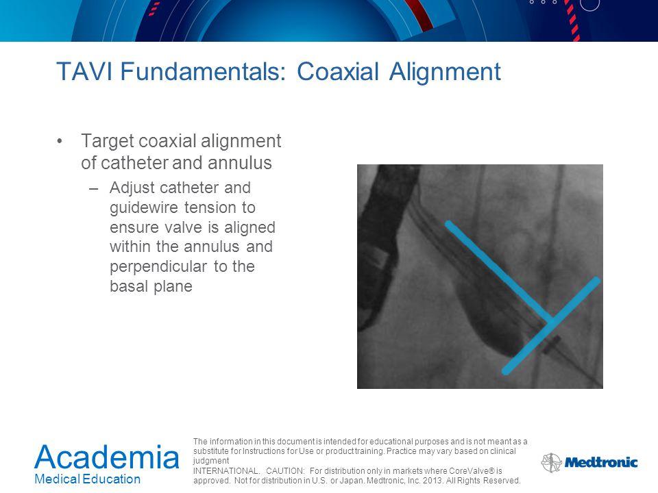 TAVI Fundamentals: Coaxial Alignment